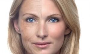 Botox_clip_image004